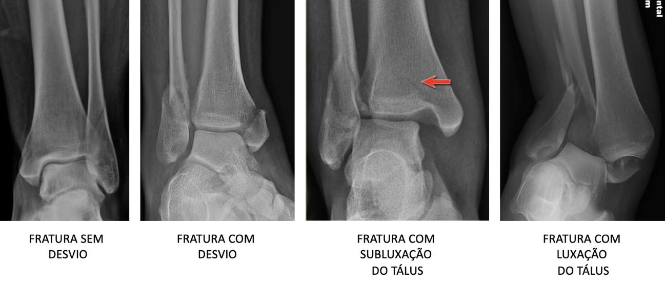 Ortopedista-EduardoPires-fratura 6